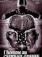 L'Homme au cerveau greffé